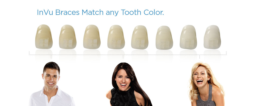InVu BracesInVu Braces Match any Tooth Color.